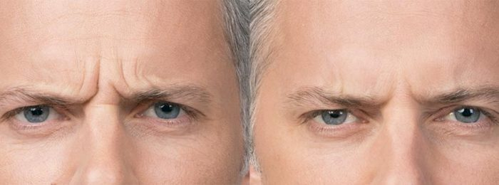 botox-before-after-max